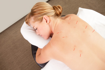 Everything You Should Know About Acupuncture